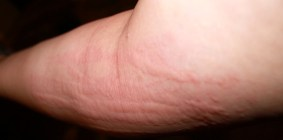 Common skin rashes - hives