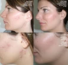 clear-acne-in-skin