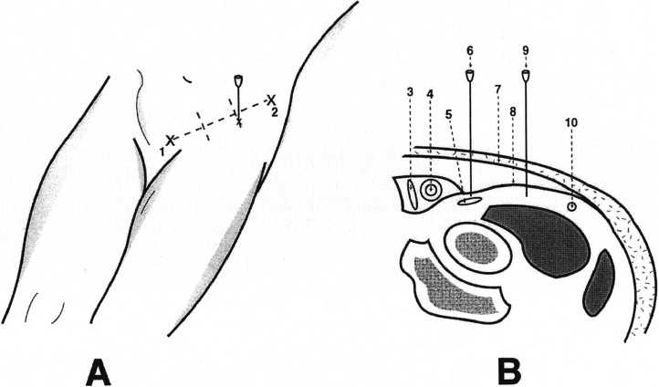 Single Fascia Iliaca Compartment Block for Post-Hip