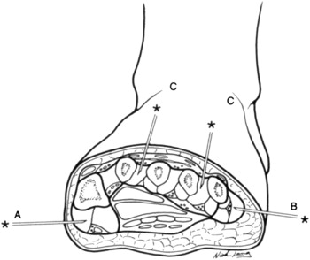 Compartment Syndrome of the Foot After Calcaneal Fracture