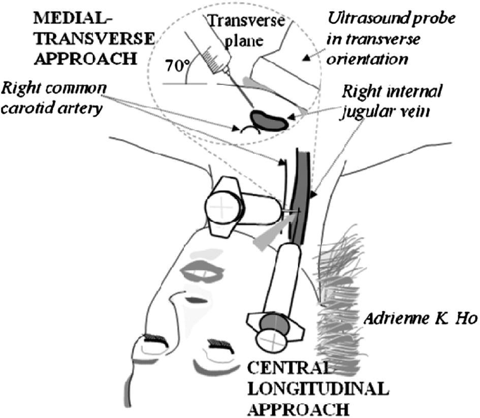 The Medial-Transverse Approach for Internal Jugular Vein