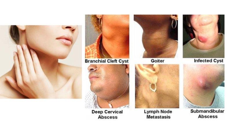 Terbebas Dari Penyakit Akibat Benjolan Di Leher Yang Berbahaya