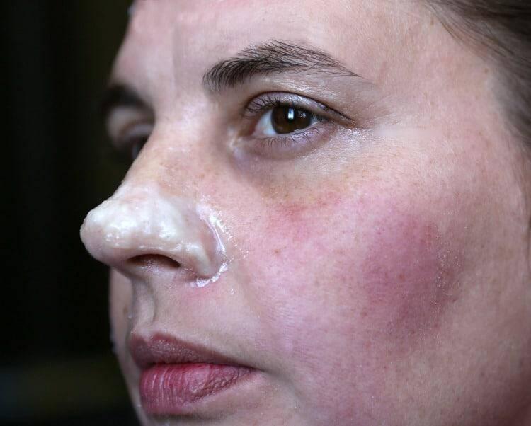 DIY Blackhead Peel Mask