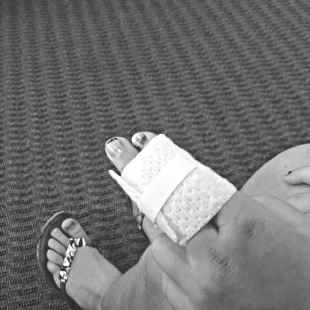 Is the finger sprained or broken? (It's broken..)