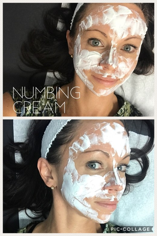Video: My Experience Getting EMatrix Skin Laser – Jersey Girl Talk