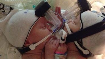 Te bliźnięta urodziły się złączone klatką piersiową. 9 miesięcy później wreszcie mogą osobno opuścić szpital!