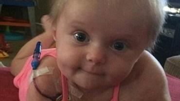 Mała dziewczynka straciła ramię. Jej rodzice dali jej prezent, który pomógł jej to zaakceptować.
