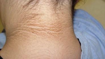 Myśleli, że skóra ich dziecka jest po prostu brudna. Mocno się zdziwili, gdy lekarz oznajmił im, o czym to świadczy!