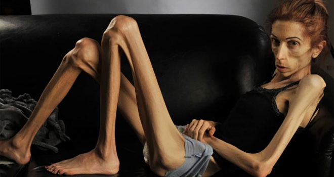 rachael-farrokh-and-anorexia-8-p