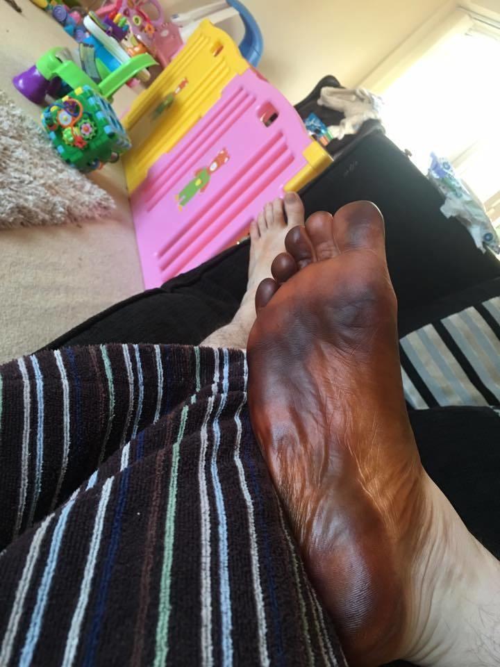 Obudził się z czarną stopą, myślał, że zaatakowała go okropna choroba. Dopiero dziewczyna uświadomiła go, co się stało