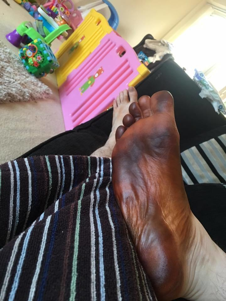 He woke up with a black foot and thought a terrible disease was attacking him. His girlfriend finally realized what had happened 3