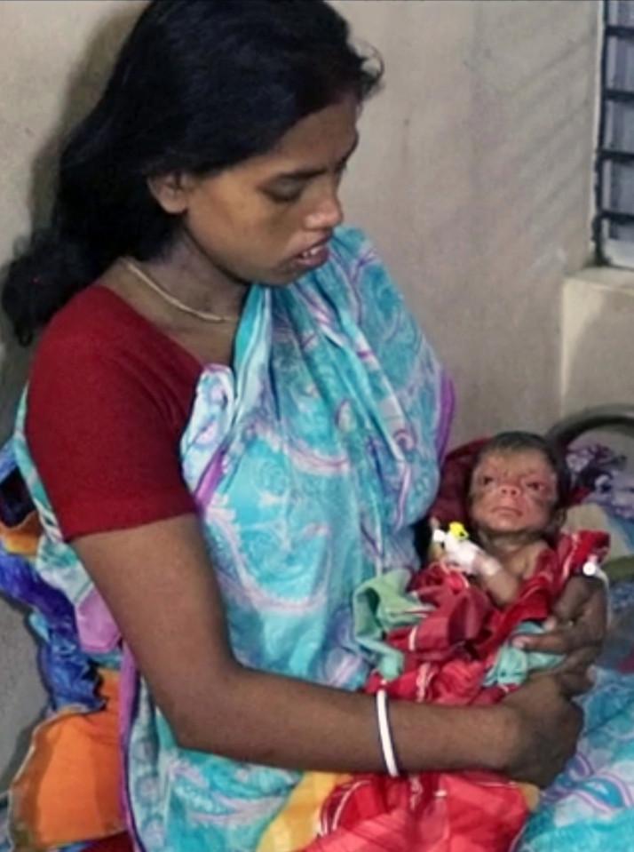 Kiedy zobaczyła twarz swojego dziecka, przeraziła się. Gdy odkryła, dlaczego tak wygląda, strach zmienił się w ekscytację