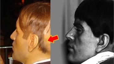 Wygląda jak normalny człowiek, ale to, co kryje się pod jego włosami jest przerażające! Jak to w ogóle możliwe?