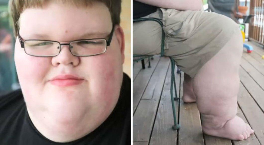 Gdy się urodził, ważył prawie 6 kilo i cały czas zastraszająco przybierał na wadze. Ostatecznie choroba sprawiła, że wieku 15 lat ważył 320 kilogramów...
