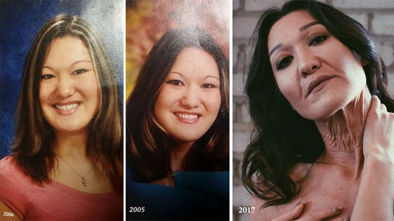 Choć Sara ma zaledwie 26 lat, już wygląda jak staruszka. Jej zdjęcia i historia skłaniają do przemyślenia naszych standardów piękna