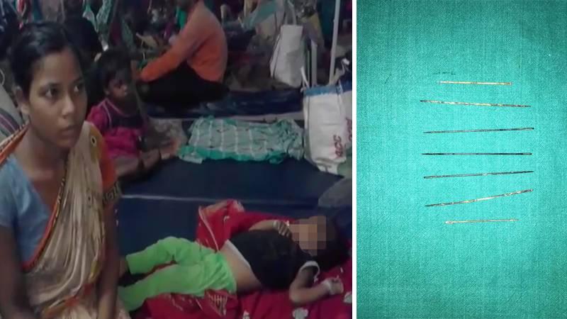 Z brzucha trzyletniej dziewczynki wyciągnięto siedem długich igieł. Lekarze byli przerażeni, gdy odkryli, że to szarlatan zrobił sobie z dziecka laleczkę voodoo!