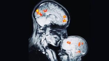 Oto co dzieje się w mózgu dziecka, gdy pocałuje je mama! Obraz z rezonansu magnetycznego mówi więcej niż tysiąc słów
