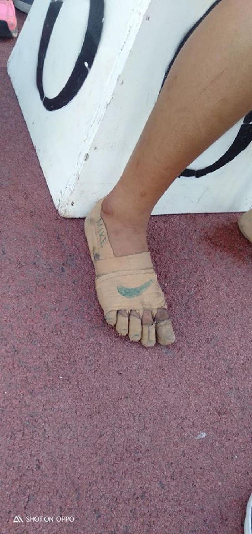"""11-dziewczynka zdobywa 3 złote medale, nosząc prowizoryczne """"buty Nike"""" zrobione z bandaża chirurgicznego"""