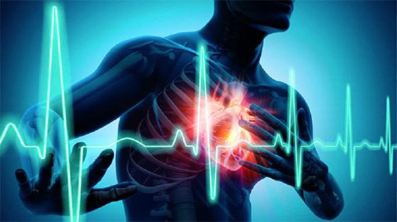 En cas de crise cardiaque, vous peu de temps pour sauver votre vie
