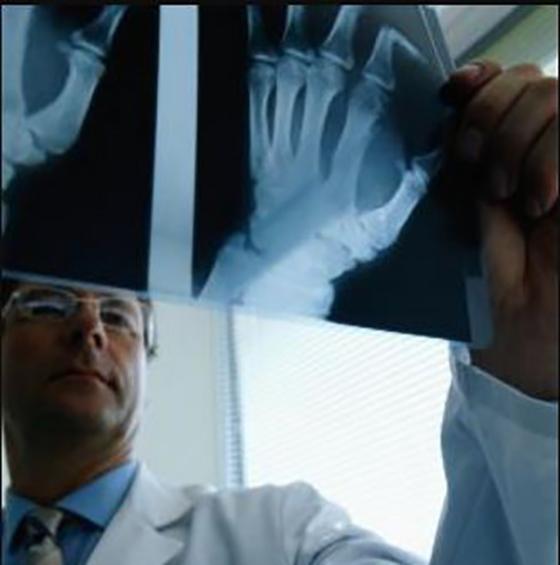 L'importance du dépistage précoce des polyarthrites rhumatoïdes
