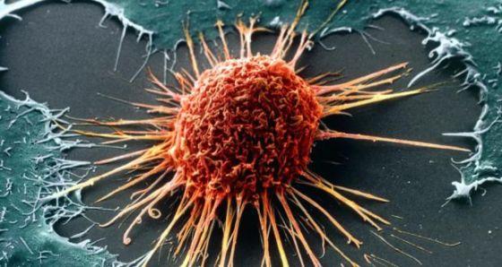 Cancer : l'intérêt de dresser le portrait génétique de la tumeur démontré