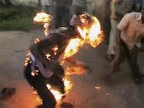 Décès d'un jeune qui s'était immolé par le feu à Arzew