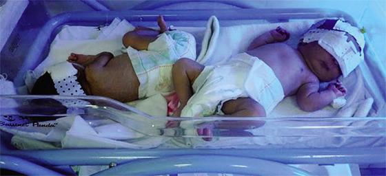Des spécialistes appellent au dépistage des troubles mentaux chez le nouveau-né