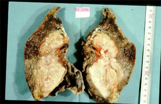 Cancer du poumon : Une moyenne de 3500 cas par an en Algérie