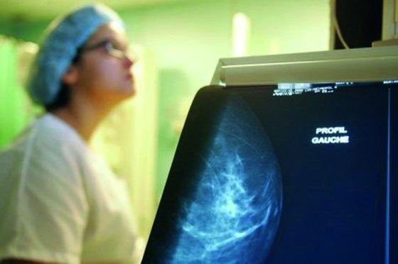Plan national contre le cancer : Vers un partenariat algéro-britannique « efficace »