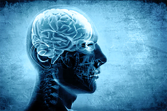 L'œdème cérébral nécessite  une prise en charge rapide