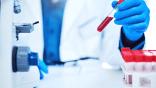 Coronavirus: 289 nouveaux cas, 240 guérisons et 6 décès