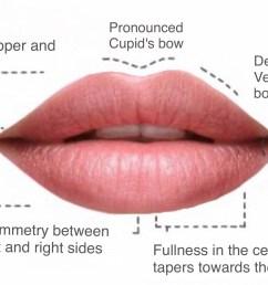 lip fillers hamilton luscious lips botox clinic hamilton lip to lip lip filler diagram [ 2181 x 1336 Pixel ]