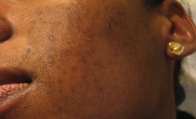 peaux-graisseuses-astuces-jewanda