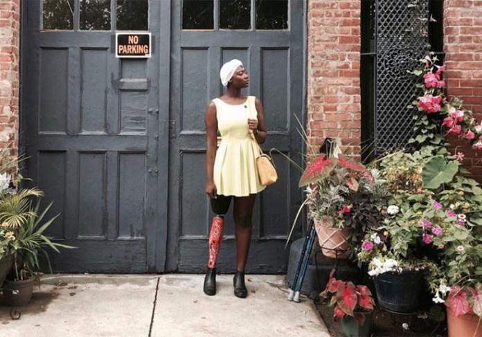 mama cax mannequin blogueuse amputee jambe jewanda2