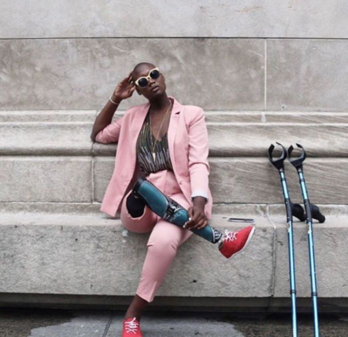 mama cax mannequin blogueuse amputee jambe jewanda4