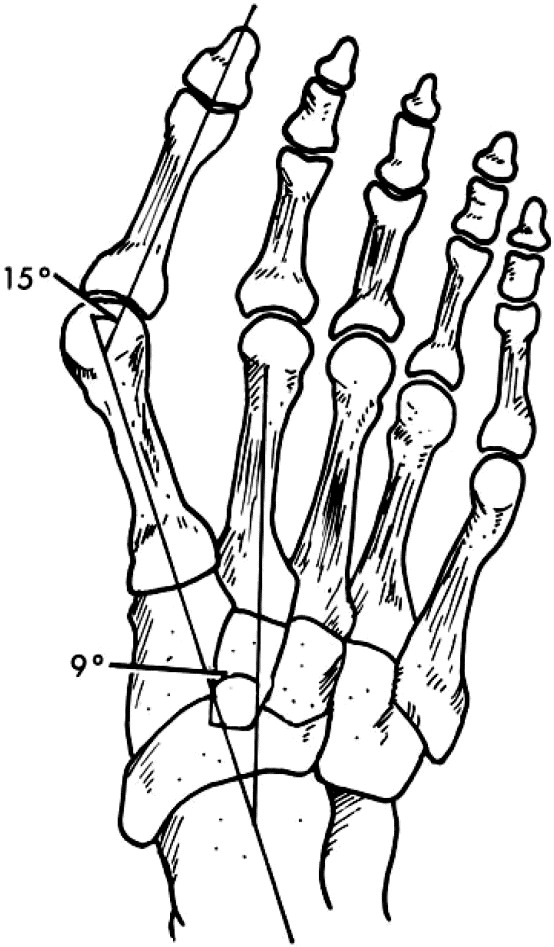 The Mitchell and Scarf Osteotomies for Hallux Valgus