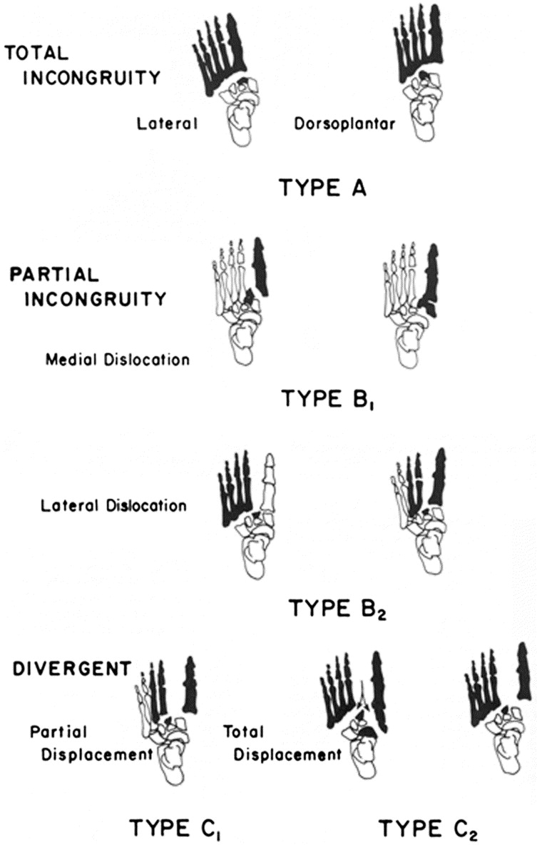 Fracture Dislocations of the Tarsometatarsal Joints