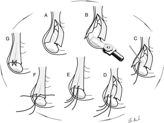 Single-row Versus Double-row Repair of the Distal Achilles