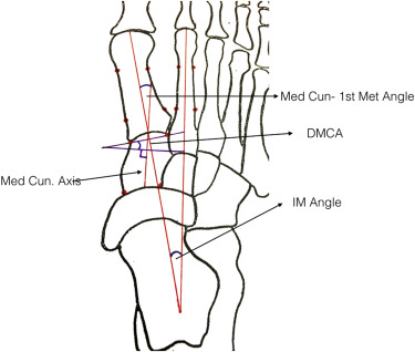 Radiographic Relevance of the Distal Medial Cuneiform