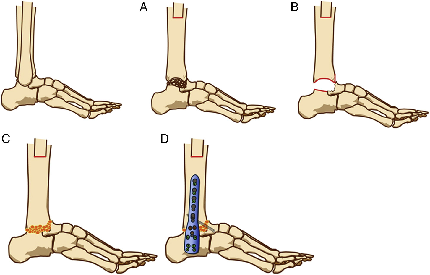 Diagram Charcot Joint Foot