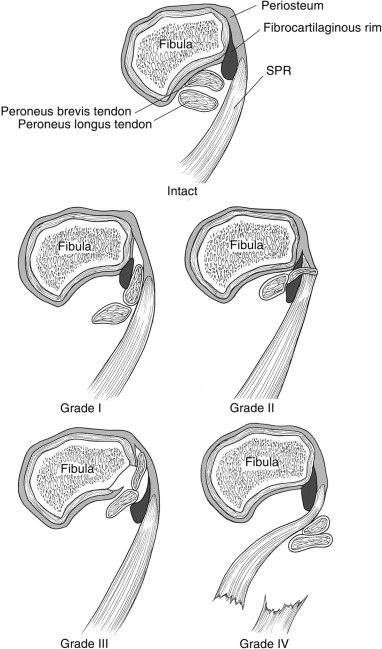 Kinematic Magnetic Resonance Imaging of Peroneal Tendon