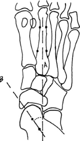 Interobserver Analysis of Standard Foot and Ankle