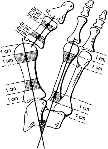 Radiographic Angles in Hallux Valgus: Comparison between