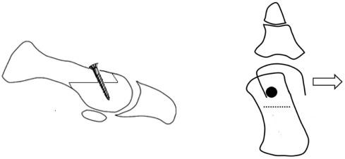 A Comparative Study of Mini-Scarf Versus Standard Scarf