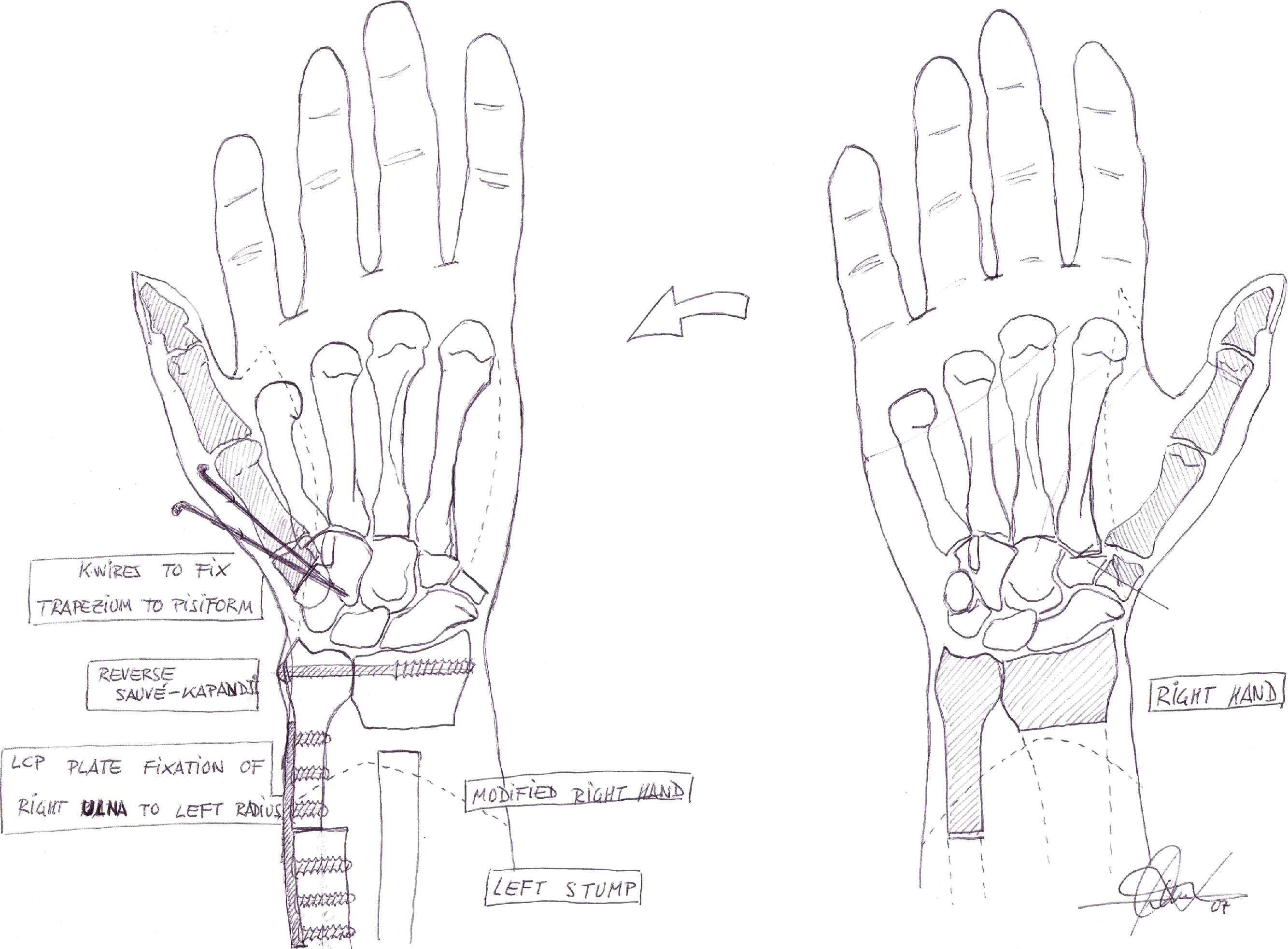 Elective Cross-Hand Transfer With Thumb Transposition