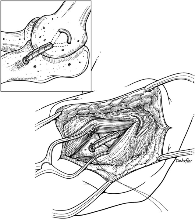 Reconstruction of the Medial Collateral Ligament of the