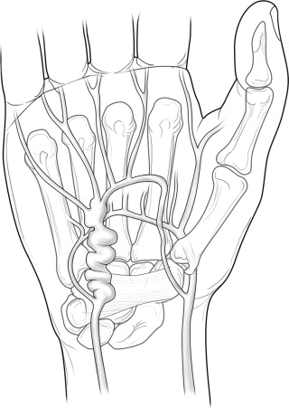 Reconstruction for Ulnar Artery Aneurysm at the Wrist