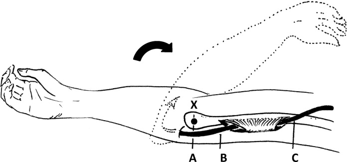 Laxity of the Ulnar Nerve During Elbow Flexion and