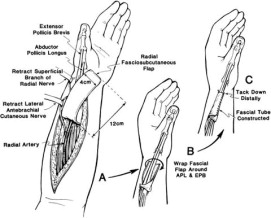 The distally based radial forearm fascia-fat flap for