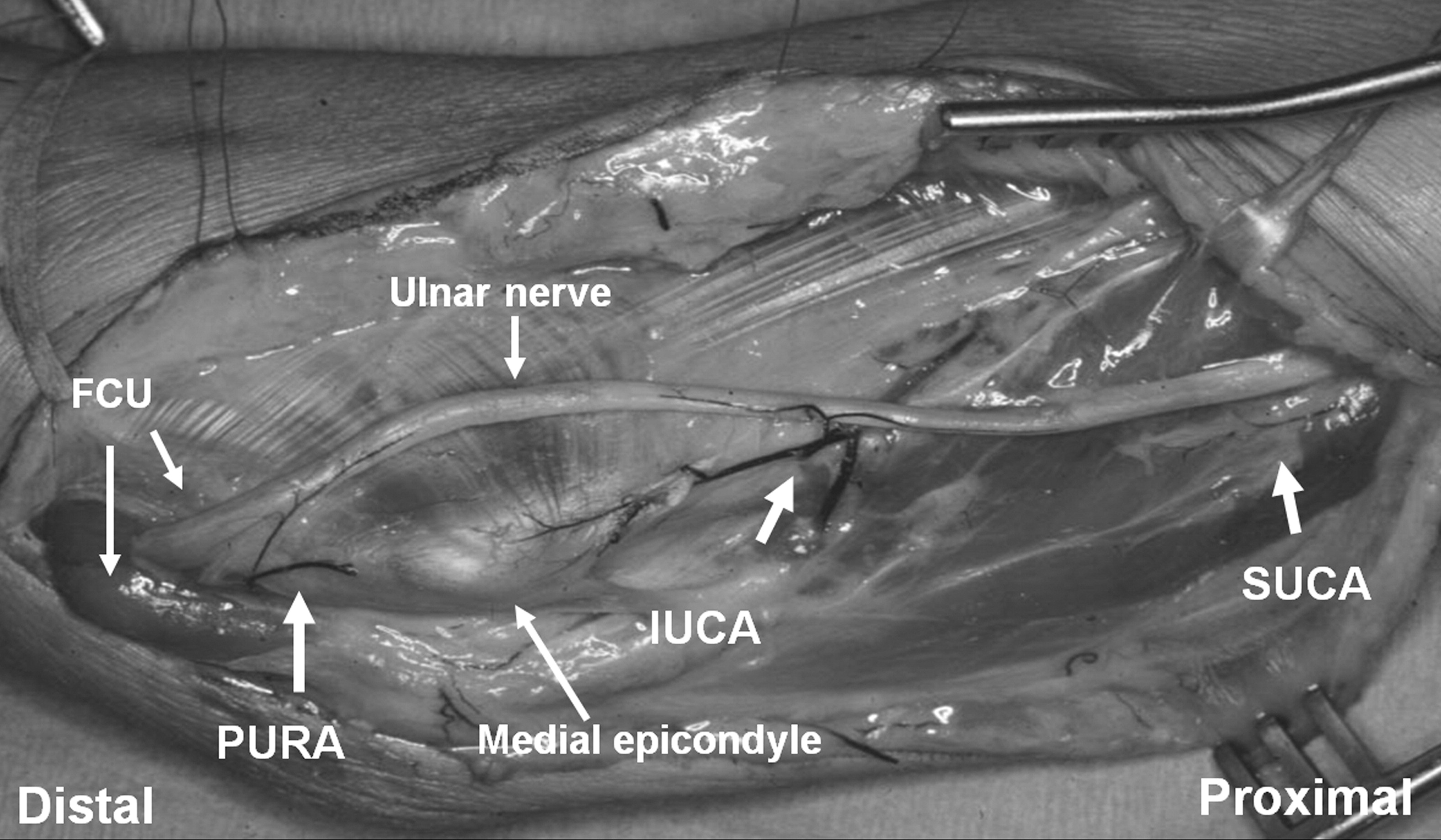 ulnar nerve diagram bone cross section the effect of vascular pedicle preservation on blood flow